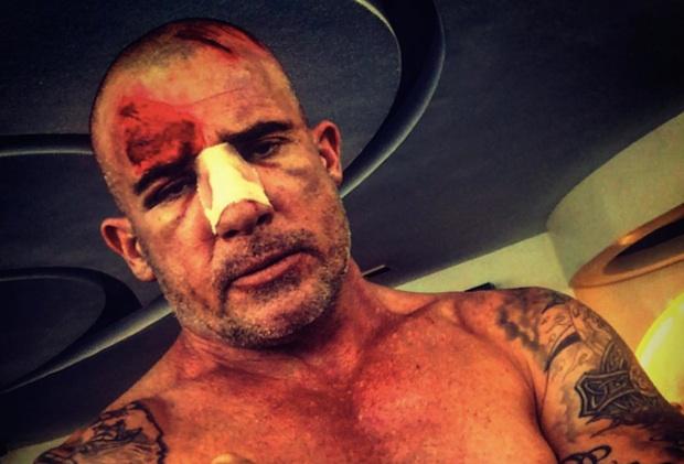 Prison Break Dominic Purcell Injured